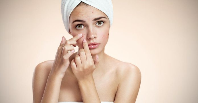 Acne spots can be removed with simple home remedies.
