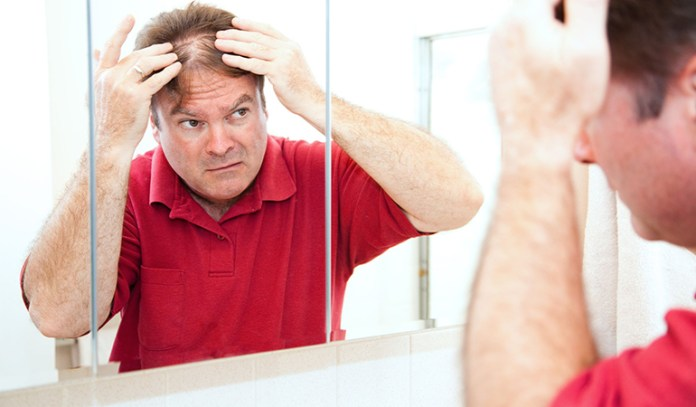 hair loss in men and women with age