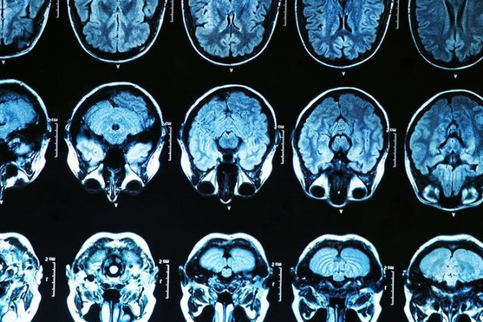 Dystonia Causes Neurological Changes