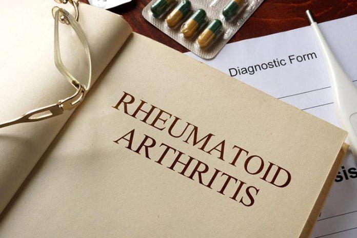Falsa May Treat Rheumatoid Arthritis