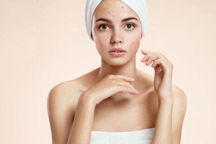 Gram flour reduces acne.