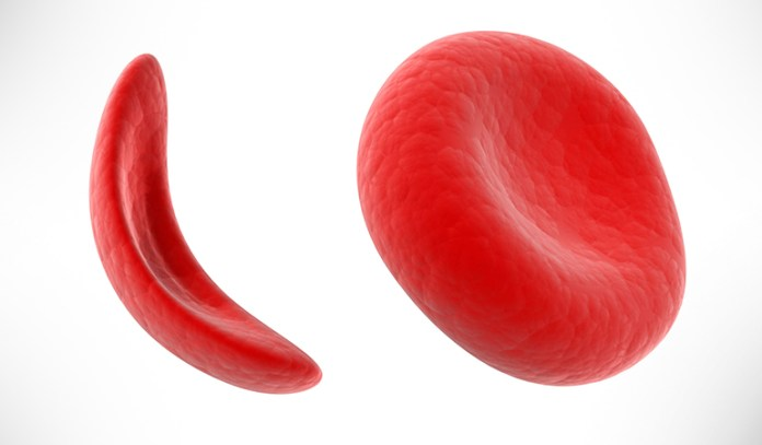 Sickle cell anemia is of several types.