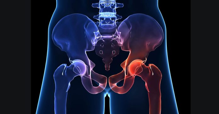 Hip pain can be caused by injuries