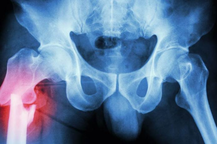 A hip fracture could cause hip pain