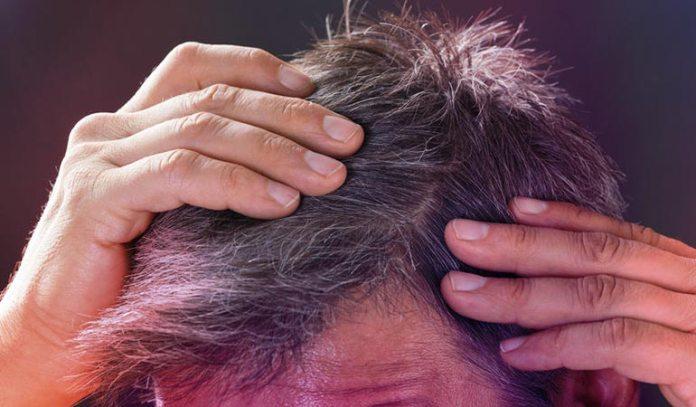 (A buildup of hydrogen peroxide bleaches hair)