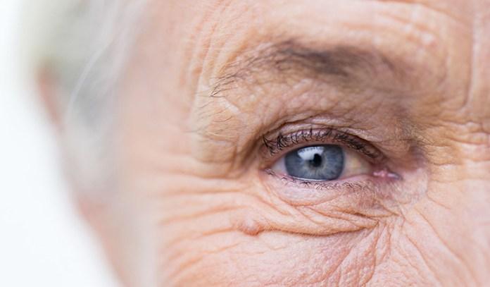 Sugar damages collagen in the skin