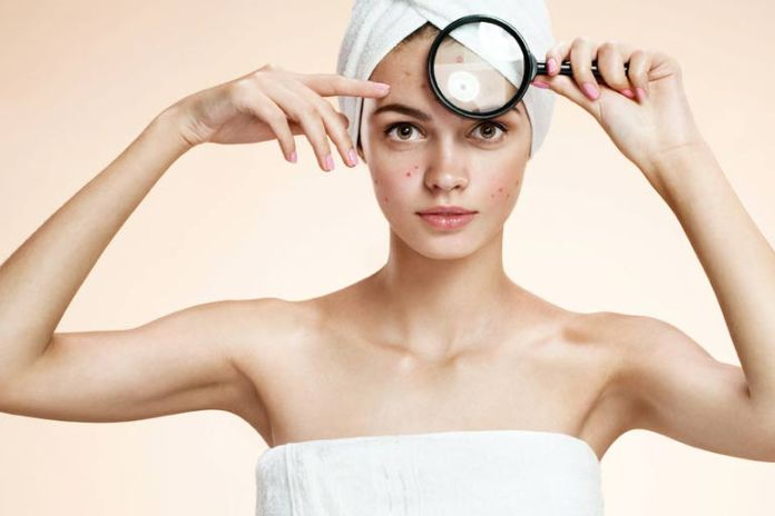Coconut oil is an effective way to treat acne
