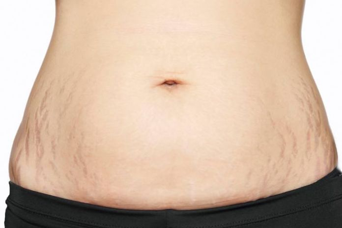 Coconut oils can be used to treat stretch marks