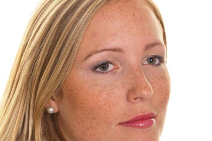 Sudden Development Of Freckles After Sunburn May Indicate An Increased Risk Of Skin Cancer