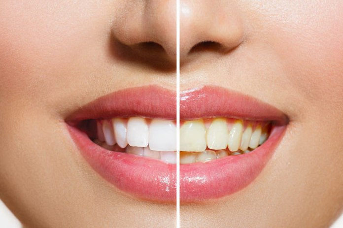 Whitening teeth does not prevent cavities