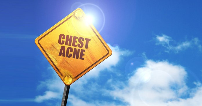 12 Home Remedies To Get Rid Of Chest Acne