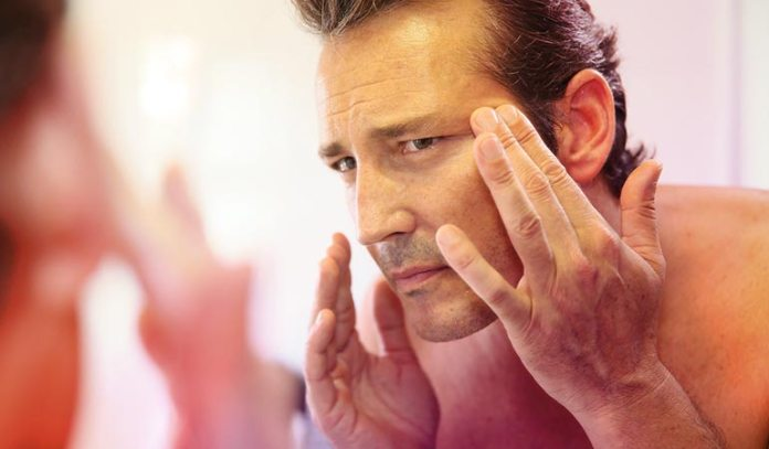 your wrinkles are multiplying quicker
