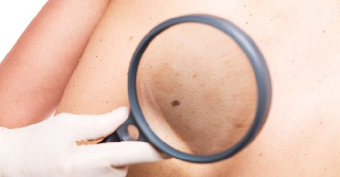 Cancer could develop if you neglect these signs
