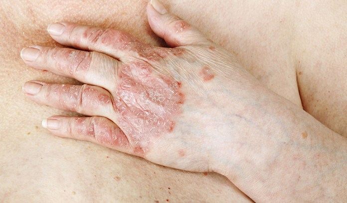 It is related to the skin cell turnover