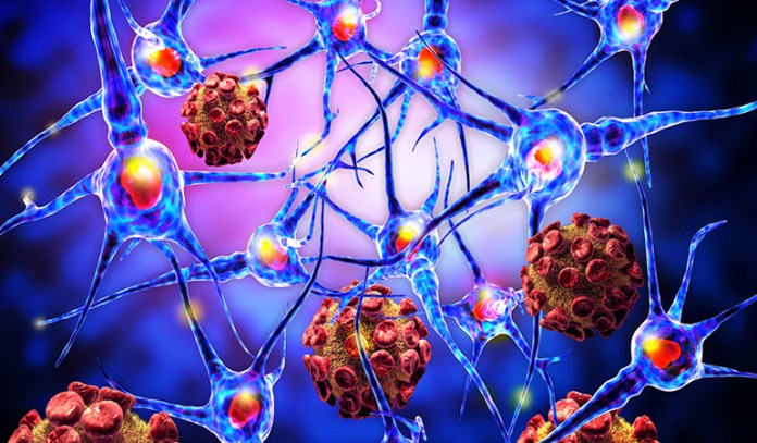 The autoimmunity that attacks the covering of the nerve fibers