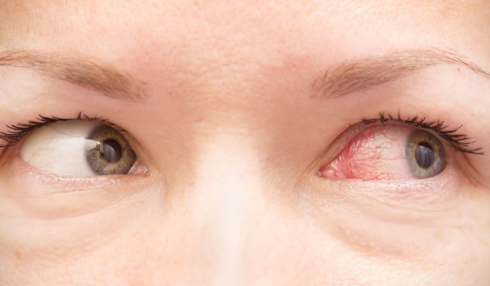 Eye irritation is a common sign of mold illness, especially if you are allergic.