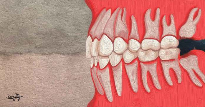 try these aftercare for wisdom tooth removal