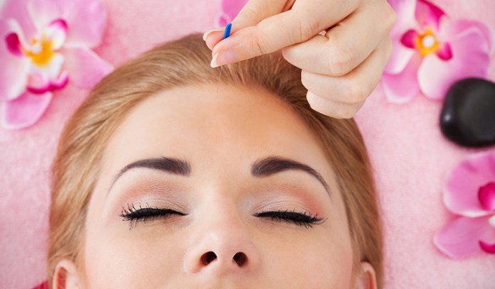 Acupuncture might help relieve scalp inflammation.