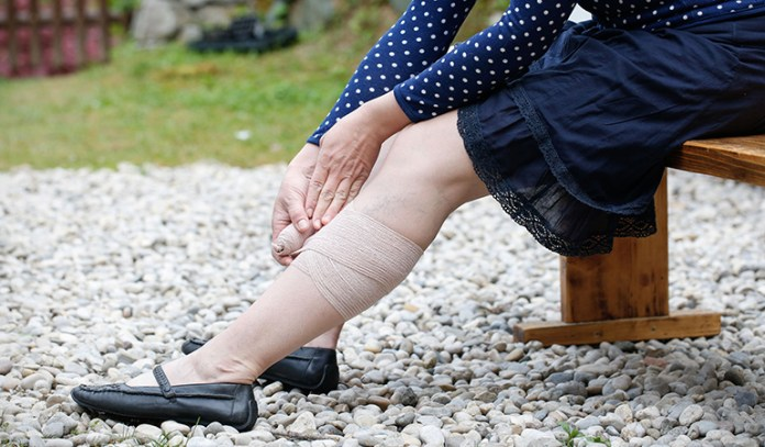 Possible causes of fluid retention include sunburn, allergies, infections, and hormonal changes.