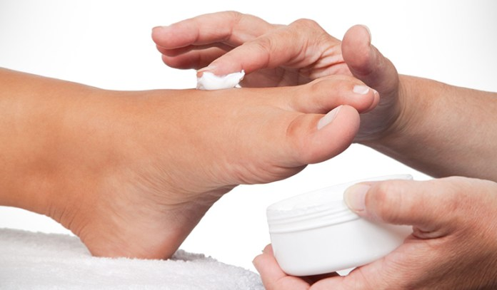 Many people claim to get relief from applying to the feet