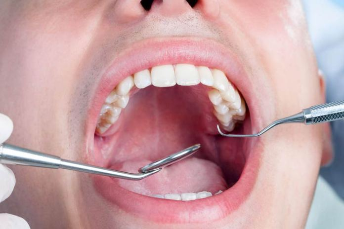 Soda and soft drink consumption can lead to oral health problems