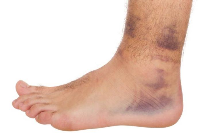 Use the RICE method to treat bruises and sprains