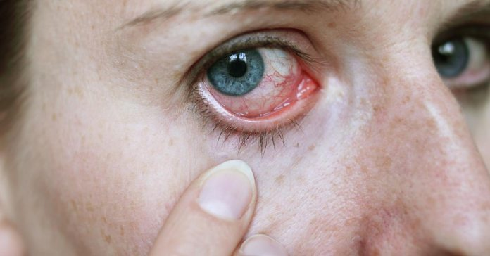 If you suffer from any condition such as diabetes, hepatitis, or autoimmune disorders, they will show up on your eyes first)