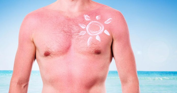 6 Easy, Natural Fixes And Kitchen Cures For Sunburned Skin