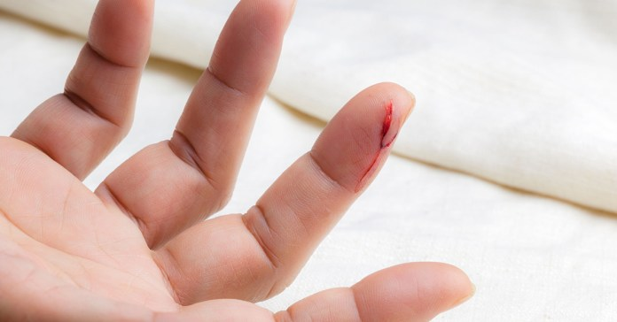 natural remedies to heal wounds