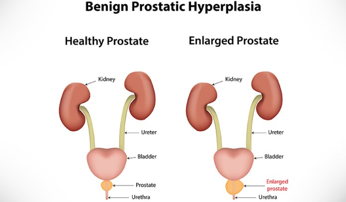 Swelling of the prostate gland causes BPH.