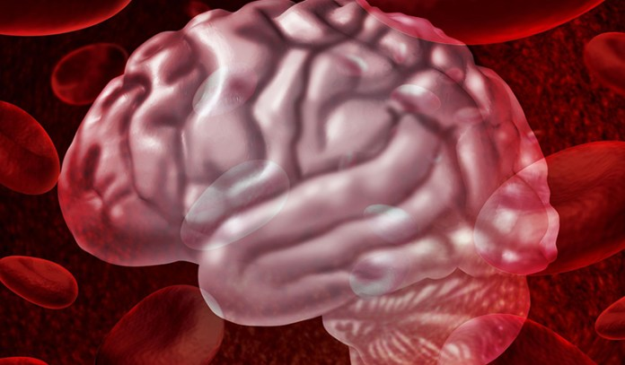 People who don't receive REM sleep are more likely to suffer from cognitive impairment.
