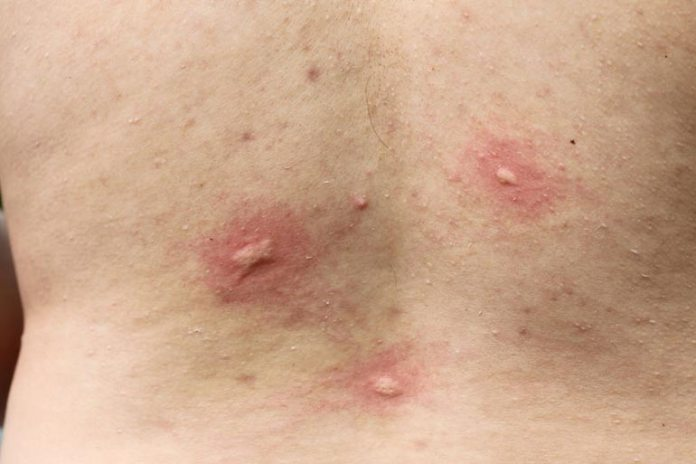 Symptoms Of Fleas And Bed Bug Bites