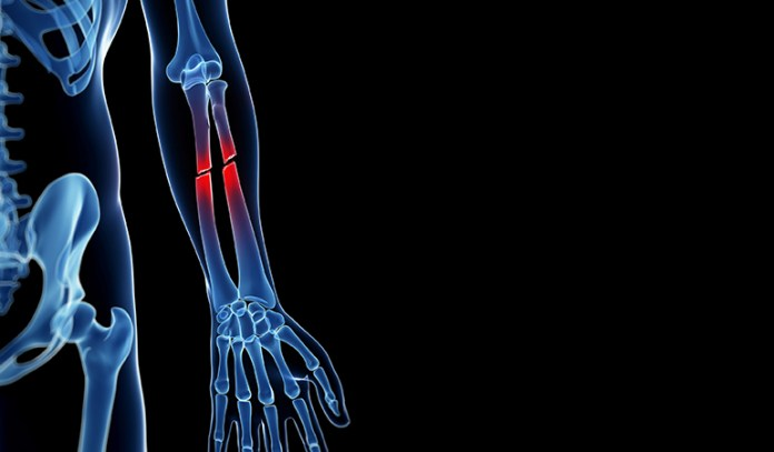 Drinking diet soda can make your bones weaker