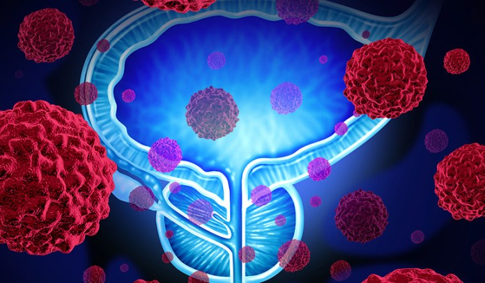 Rare cases of enlarged prostate are due to cancer.