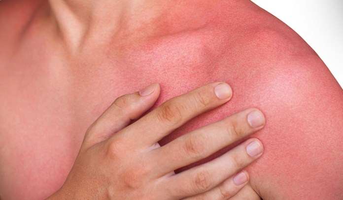 Sunburn rashes occur only after 24 hours of exposure