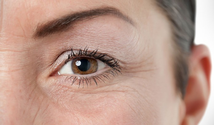 High sugar levels take apart collagen fibers, leading to thinning and wrinkles.