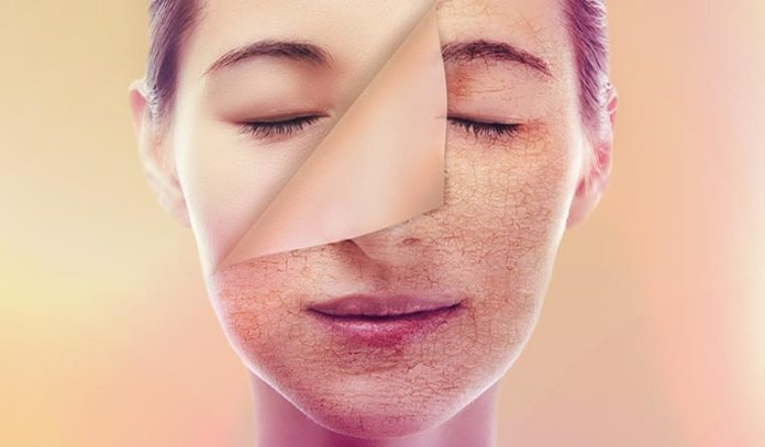 Your Dry Skin May Be A Result Of Several External Or Internal Conditions