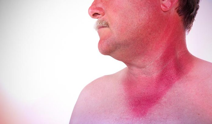 A recurring bad sunburn could be a case of rosacea.)