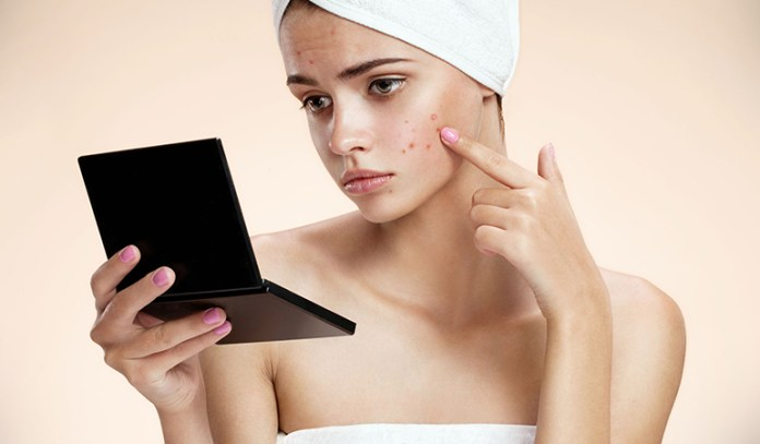 Acne on the cheeks could be due to excess exposure to pollutants and bacteria
