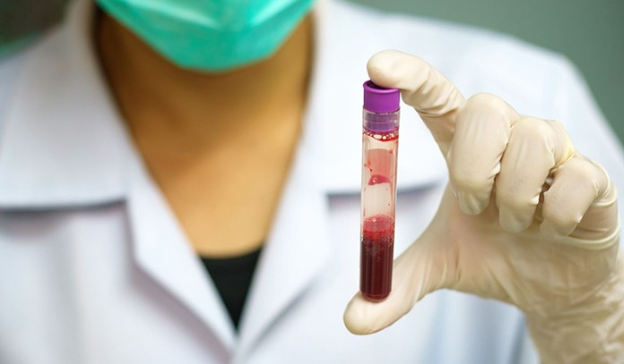 HIV test at home to rule out chances of HIV