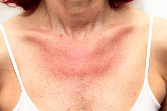 Skin issues can cause the nipple to itch