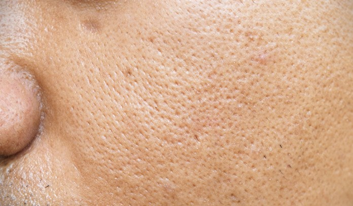 Taking testosterone can change your skin type