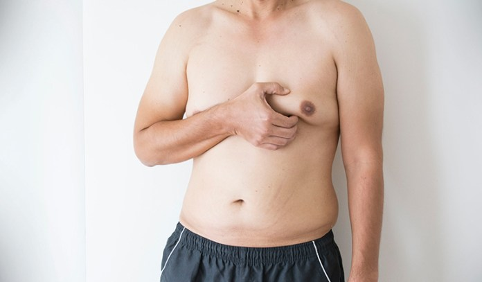 Taking testosterone can sometimes cause the enlargement of the male breast glandular tissue