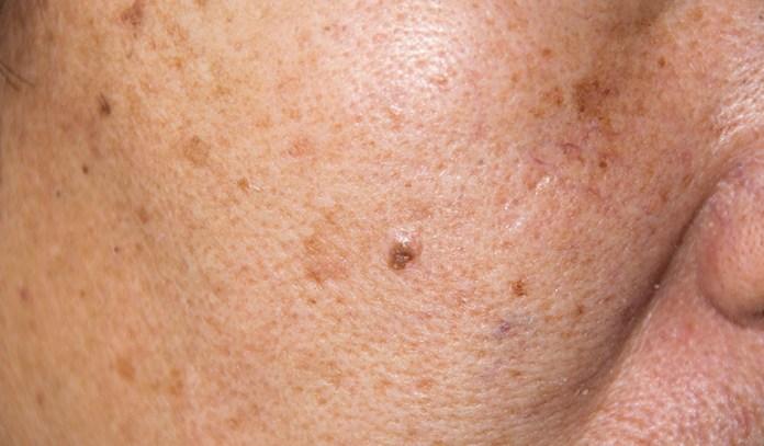 Apply Sandalwood To Reduce Hyperpigmentation