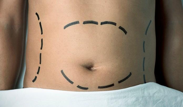 Navel Odor After Surgery, Tummy Tuck Or Laparoscopy