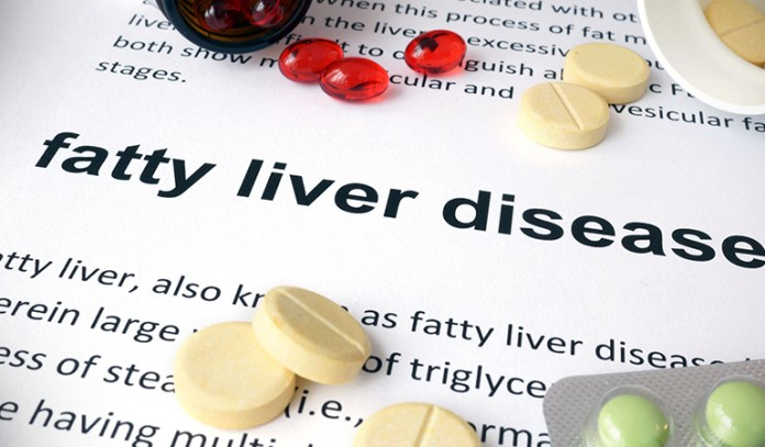 Type 2 diabetes, obesity, and metabolic syndrome causes fatty liver disease