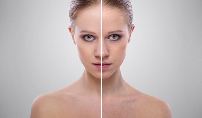 The skin lightening properties of turmeric help in improving skin complexion