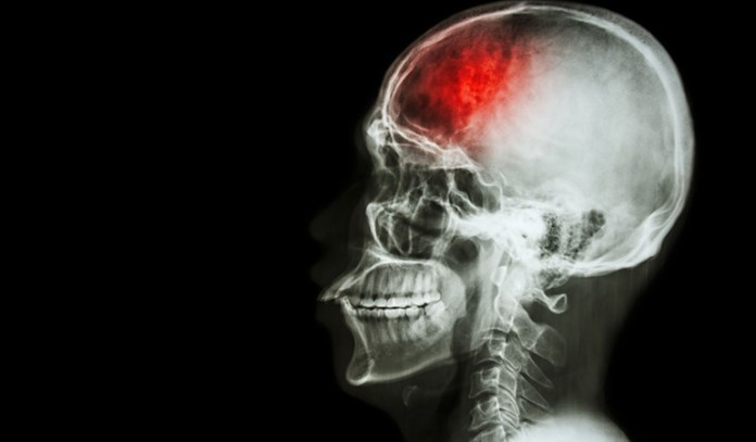 smoking and drinking too much alcohol can increase risk of stroke