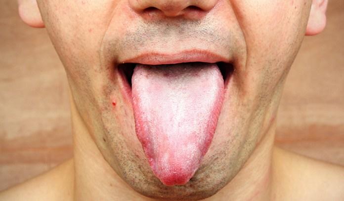 A thick tongue coating indicates poor digestion, while no tongue coating indicates a lack of body fluids