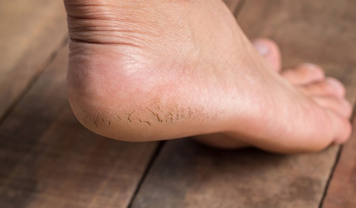 Cracked skin and dry skin can be effectively treated using turmeric
